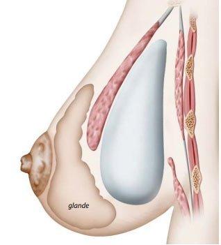Prothèses mammaires déroulement de l'intervention