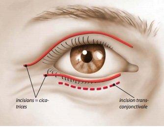 Blépharoplastie cicatrices
