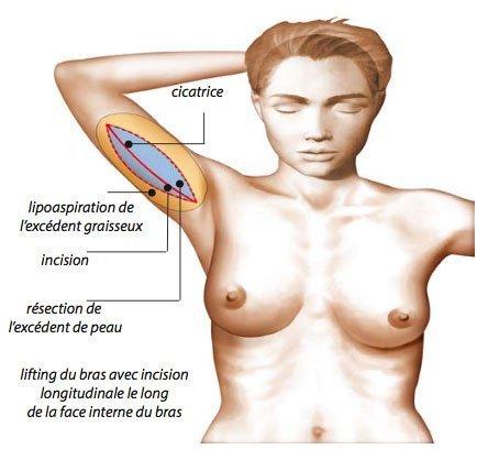 cicatrice brachioplastie